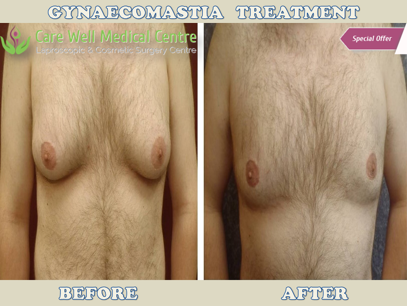 Gynaecomastia Treatment